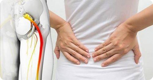 pinched sciatica nerve relief