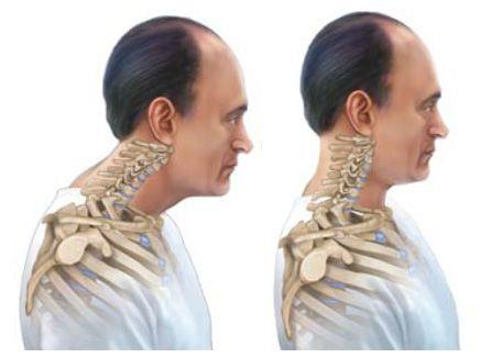 exercises to correct forward head posture