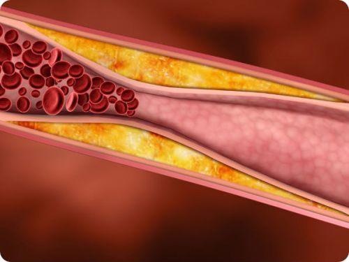 high cholesterol treatment home remedies