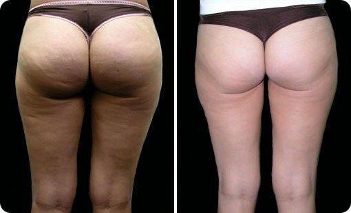 can you get rid of cellulite once you have it