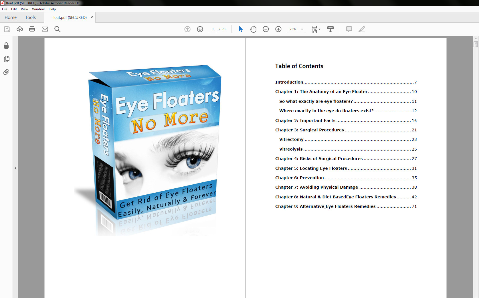 Eye Floaters No More table of contents